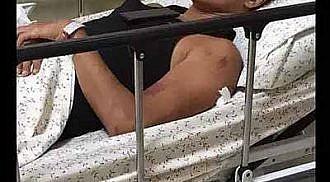 Jake Cuenca hurt in bike accident